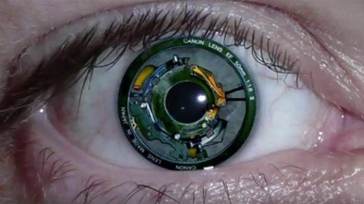 binoic eye implant