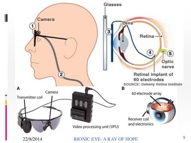 bionic-eye-woks